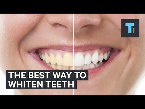 The best way to whiten teeth
