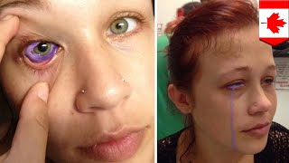 目から紫の涙…目のタトゥーに失敗したモデル女性  - トモニュース
