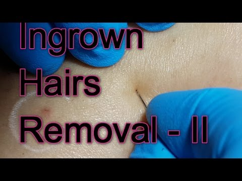 New Session of Ingrown Hairs Removal - II