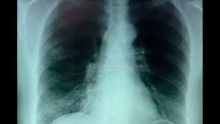 Síntomas del cáncer de pulmón: consulte si presenta alguno, incluso si no es fumador