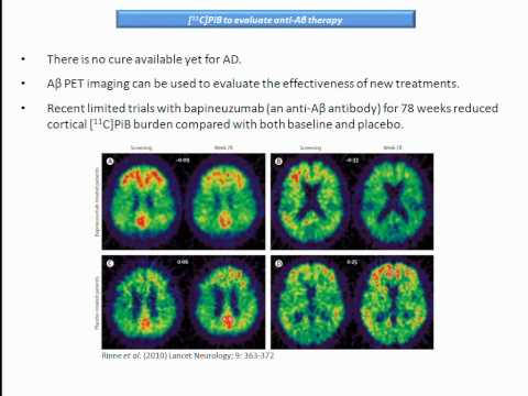 Brain Imaging and Neurodegenerative Disorders