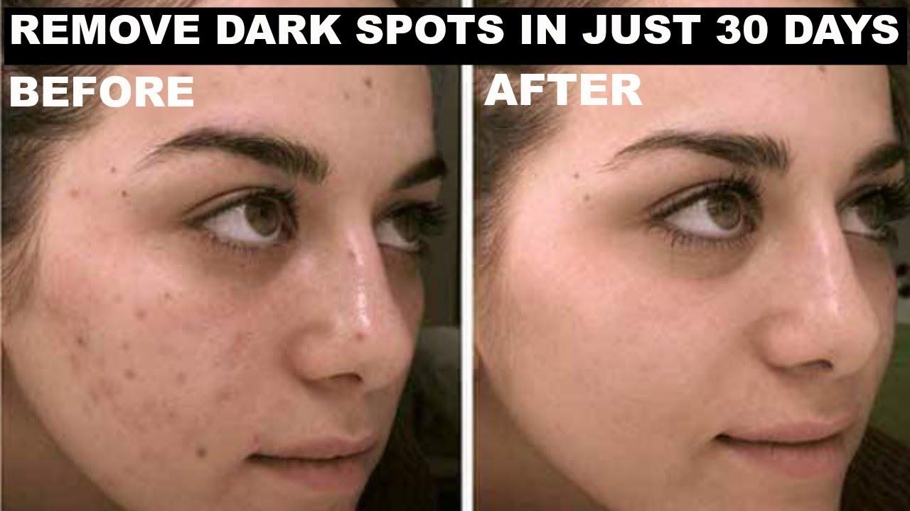 IN JUST 30 DAYS Remove DARK SPOTS, BLACK SPOTS & FADE ACNE SCARS | Elegant  Rosy