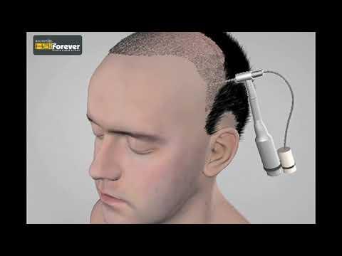 Hair Transplant – Permanent Hair Restoration - RichFeel
