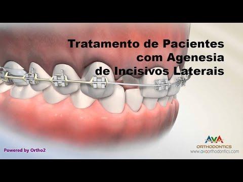 agenesia dental antes y despues en