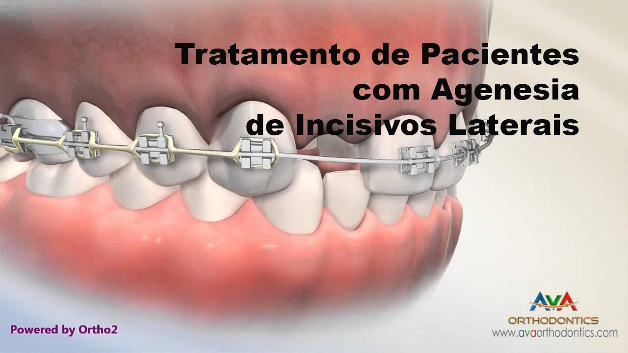 agenesia de laterales ortodoncia
