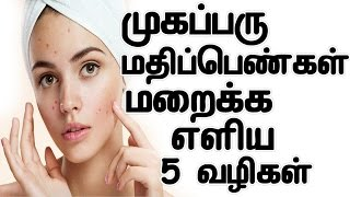 Pimple Mark Removal Home Remedy In Tamil