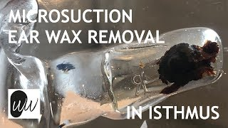 Microsuction Ear Wax Removal of Ear Wax Stuck in Isthmus of Ear Canal - #396