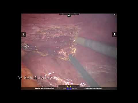 Karaciğerin Metastatik Tümöründe Robotik Metastazektomi K Dolay