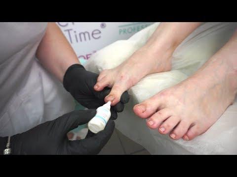 Вросший ноготь. Поэтапная процедура удаления ногтя и рекомендации.