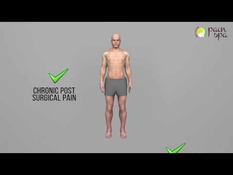 Post Hernia Surgery Pain | Hernia Surgery Pain Relief | Pain