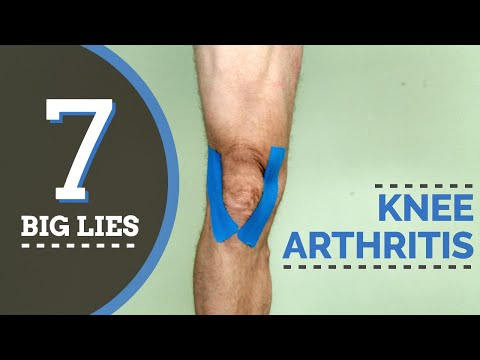 7-big-lies-about-treating-knee-arthritis--you-should-know!