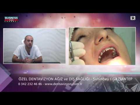 https://www.dentavizyon.com.tr/video/dt-dr-bahadir-odabas-ortodonti-hakkinda/