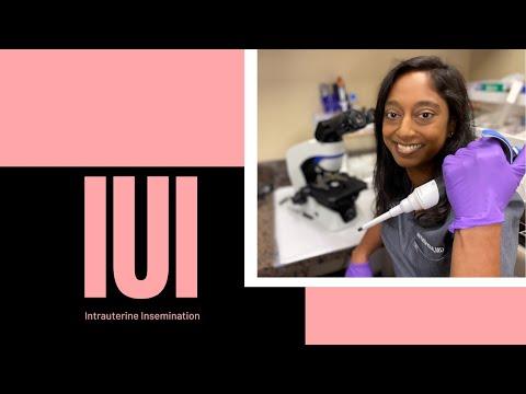 Video #8: Intrauterine Insemination (IUI)