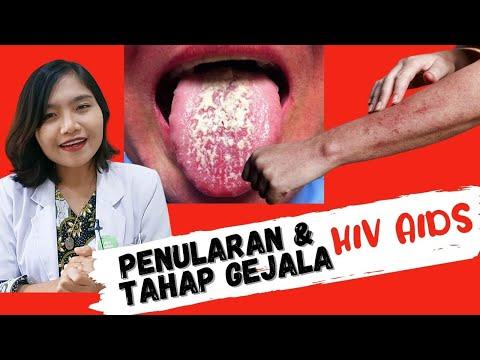 HIV AIDS #1 - Penularan Dan Tahap Gejala