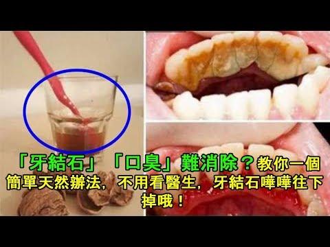 「牙結石」「口臭」難消除?教你一個簡單天然辦法,不用看醫生,牙結石嘩嘩往下掉哦!