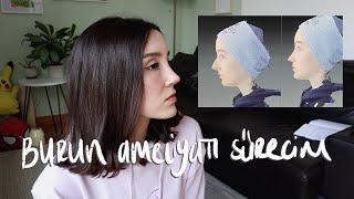 burun ameliyatı vlogu ve pişmanlığım