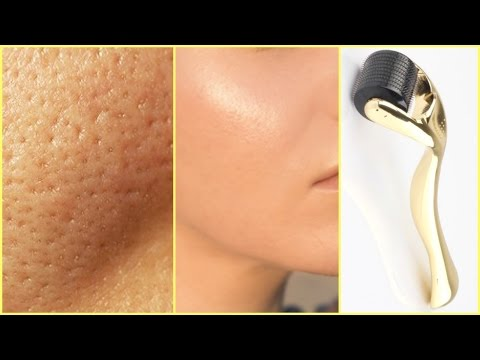 HOW TO GET CLEAR GLOWING SKIN, SPOTLESS SKIN WITH DERMA ROLLER │GET RID OF ACNE, LARGE PORES, SPOTS