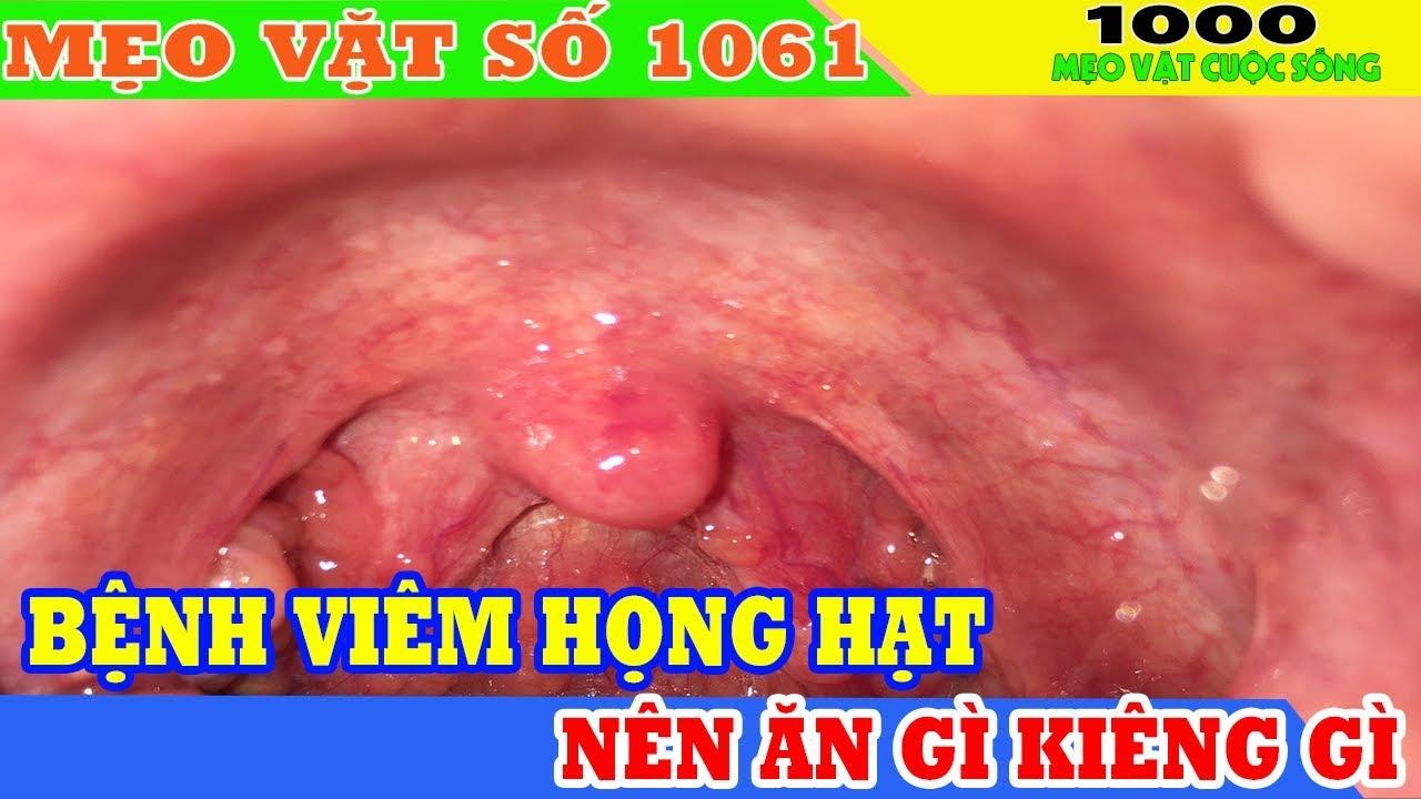 Chữa viêm họng hạt: cách chữa viêm họng hạt người bị viêm họng hạt nên ăn gì kiêng gì