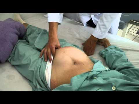 20110404 Khám khối u bụng