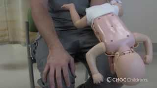 Performing the Heimlich Maneuver on a Child or Infant