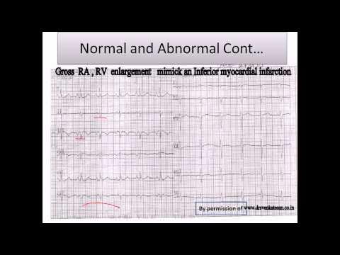 "Dr.Nabil Paktin -Cardiology Case #1 ,"" Q-wave without MI"" -Dari-version.avi"