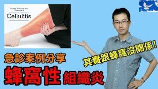 『擦傷』不處理,小心變成『蜂窩性組織炎』!  急診案例分享EP2
