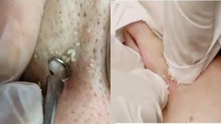 ВЫДАВЛИВАНИЕ и ЧИСТКА ЛИЦА ЧЕРНЫЕ ТОЧКИ УГРИ ПРЫЩИ АКНЕ Pimple Popping Compilation