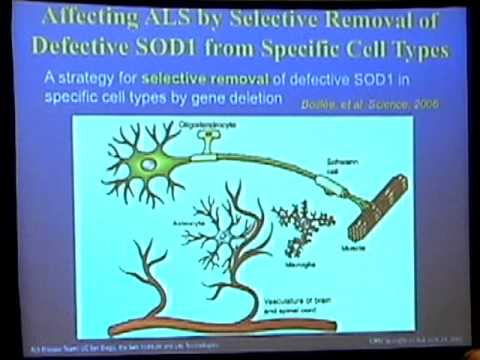 Lou Gehrig's Disease (ALS): UCSD Team's Stem Cell Therapy Rationale