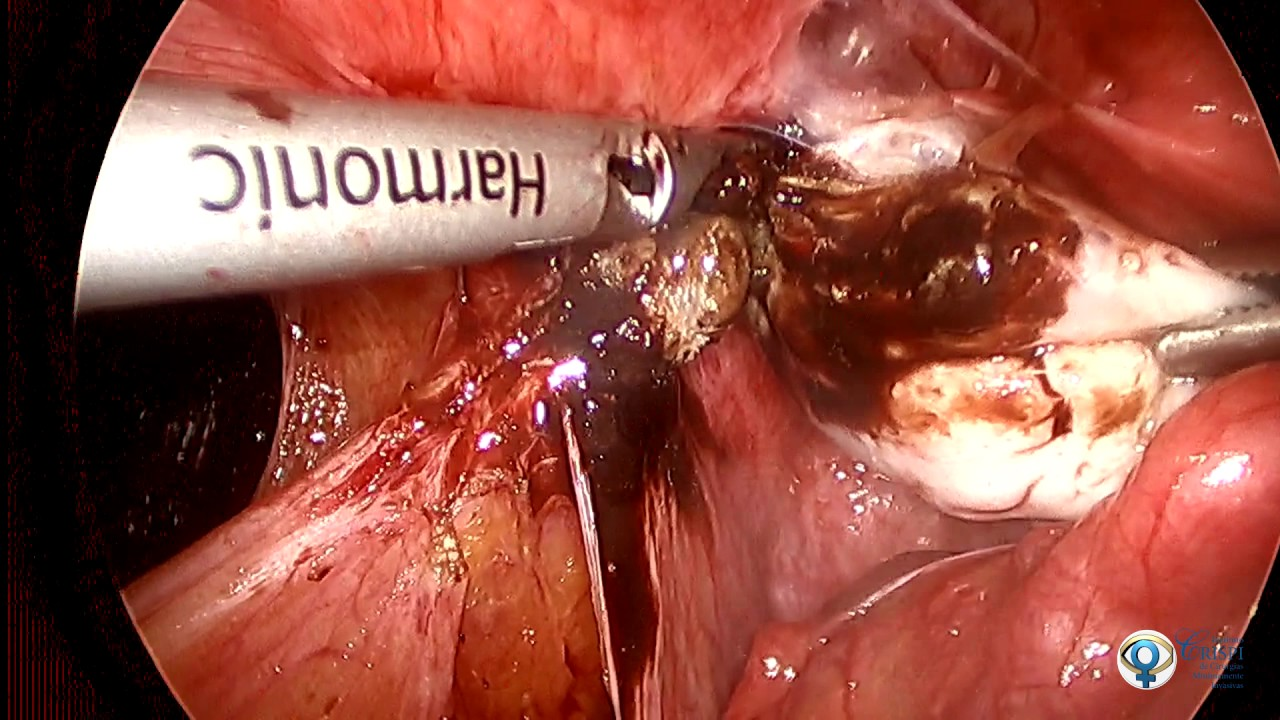 Histerectomia total abdominal con salpingooforectomia bilateral