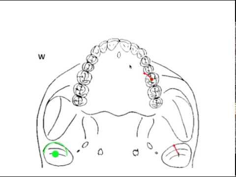 DYNAMIC OCCLUSION - Working vs. Non-working Movement & Occlusal Grid