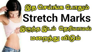 How to Remove Stretch Marks Naturally in 30 Days