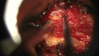 Minimally invasive surgery for lumbar microdiscectomy