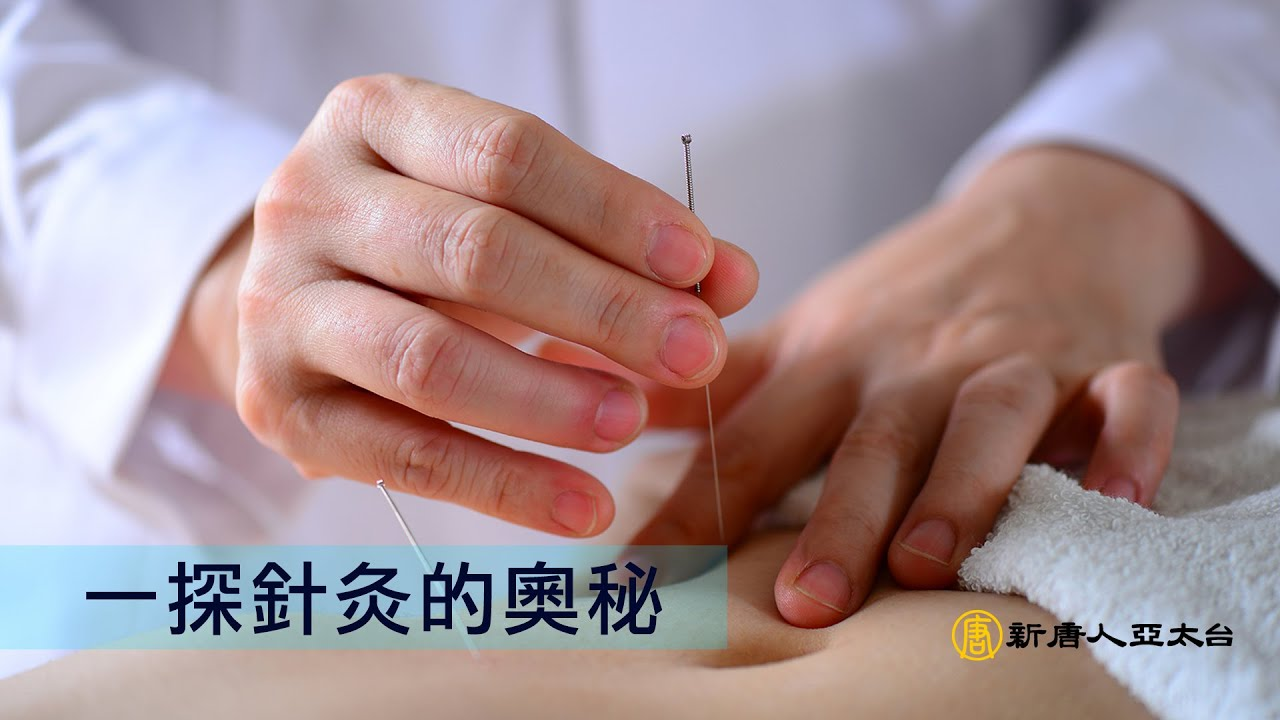 針灸照片 | [組圖+影片] 的最新詳盡資料** (必看!!) - www.go2tutor.com