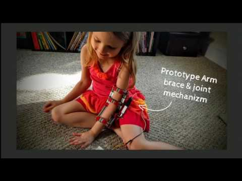 5-Year-Old Relearning How to Use Arm with Help of Robotic El