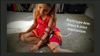 5-Year-Old Relearning How to Use Arm with Hel...