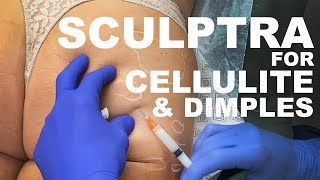 Sculptra for Cellulite and Dimples- Dr. Paul Ruff | West End Plastic Surgery