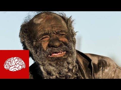 Dieser Mann hat sich seit 60 Jahren nicht gewaschen