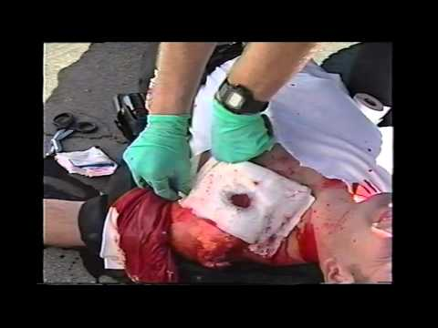 Trauma Shooting Kit Training Video