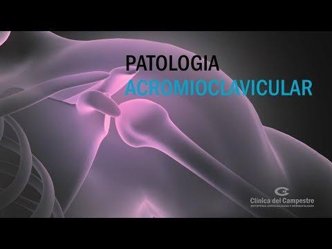 ¿Cuántas cápsulas de oregamax por próstata por día?