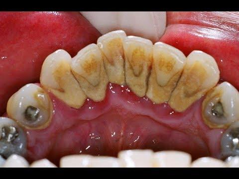 Почему когда бросаешь курить болят зубы