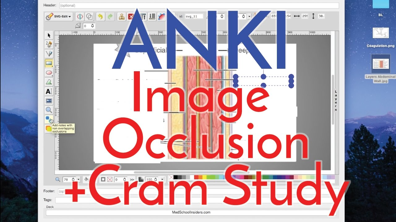 How to Use Anki Effectively - Image Occlusion 2 0 and Cram Studying [Part 2]