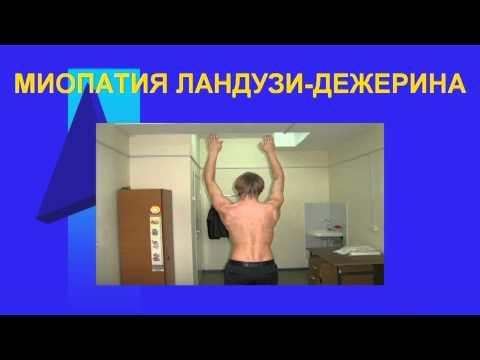 Миопатия Типы миопатии Миопатия Эрба - miopatia