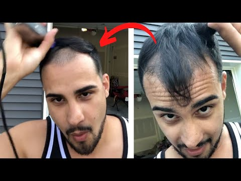 """balding-at-30-""""i'm-just-over-it!""""---shaving-my-head-and-hair-loss-story"""
