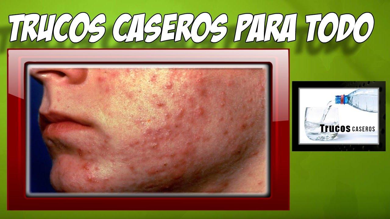 Caseros alergicas la para en reacciones cara remedios