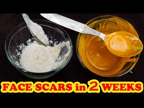 HOW TO GET RID OF ACNE SCARS ON FACE | HEAL ACNE SCARS ON FACE | REMOVE POST ACNE MARKS & DARK SPOTS
