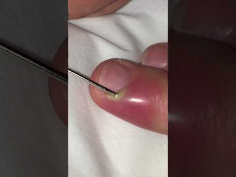 Awesome Pus Filled Finger!