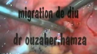 extraction de DIU par coelioscopie   YouTube
