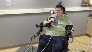 Paralyzed man moves hand