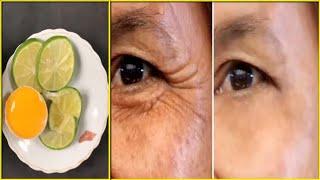 Mẹo xóa nếp nhăn CỰC HIỆU QUẢ ngay tại nhà mà không tốn quá nhiều chi phí [Tips to remove wrinkles]