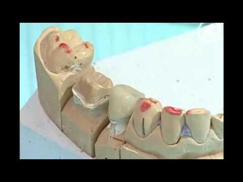 Зуб болит только ночью почему